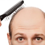 Causes and Modern Treatments for Hair Loss